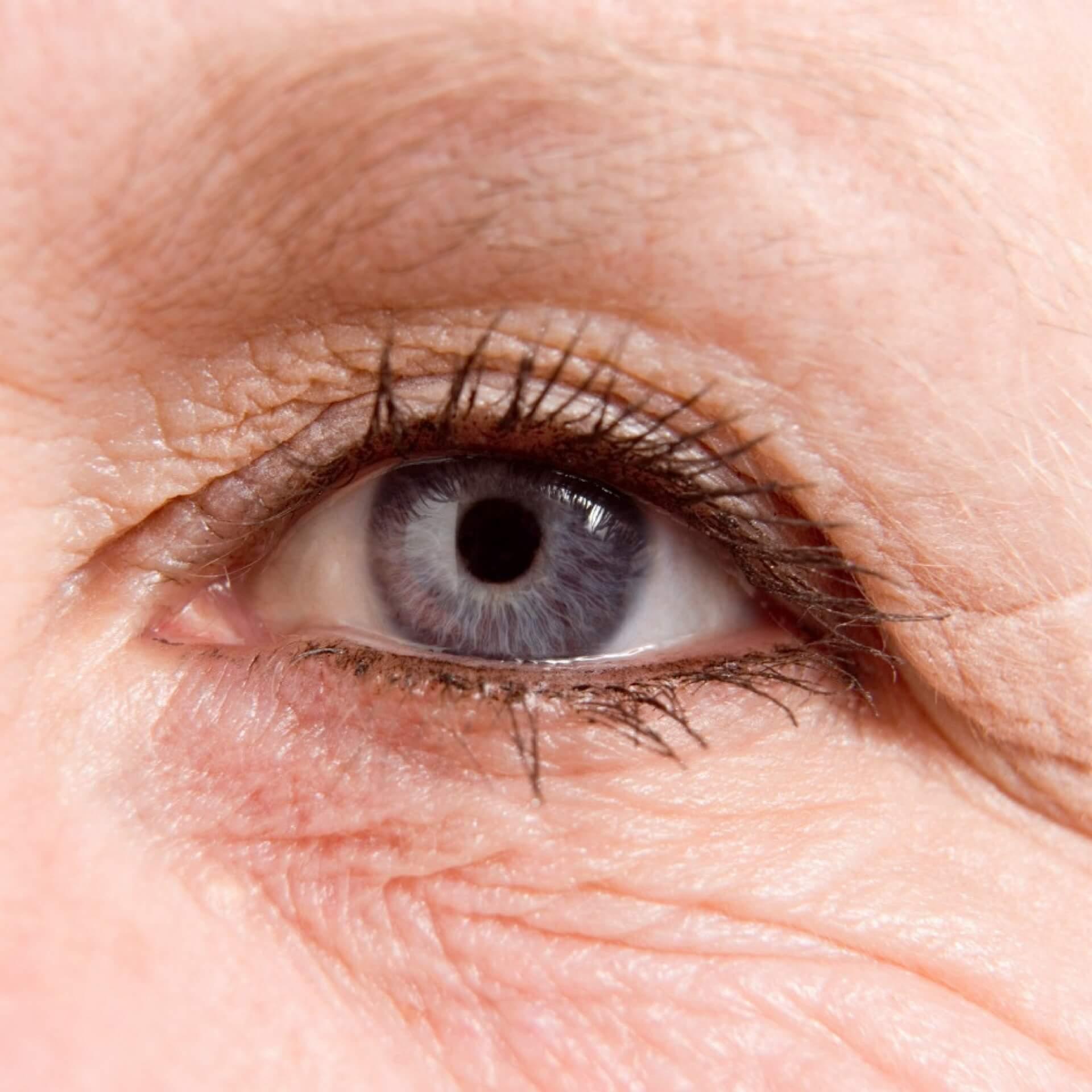sunken eyes treatment - HD1920×1920